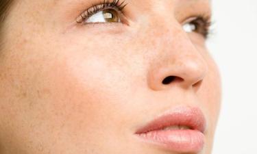 科学祛斑延伸攻略 - 如何预防色斑